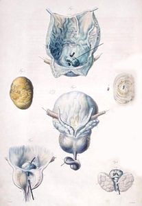 Antoine Chazal - Diseases of the bladder and prostate, from 'Anatomie Pathologique du Corps Humain'